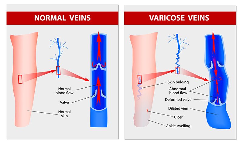 Endovenous laser treatment for veins
